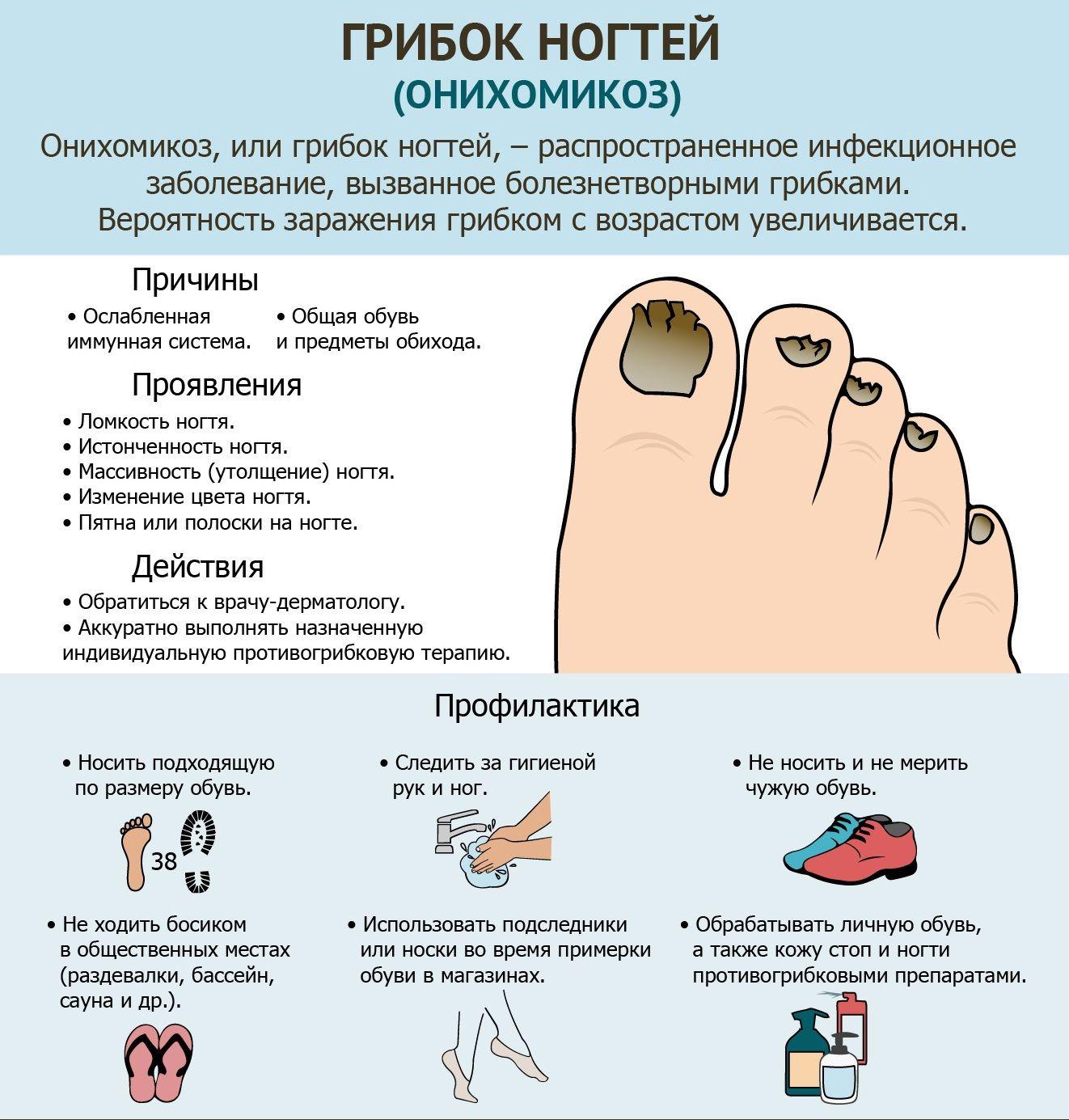 Инфографика: причины развития грибка