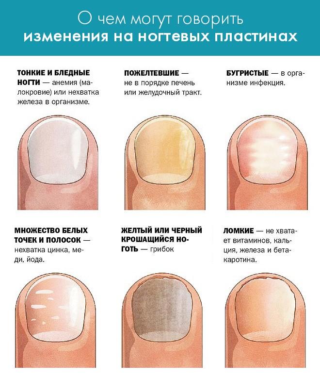 инфографика - заболевания в зависимости от цвета ногтей