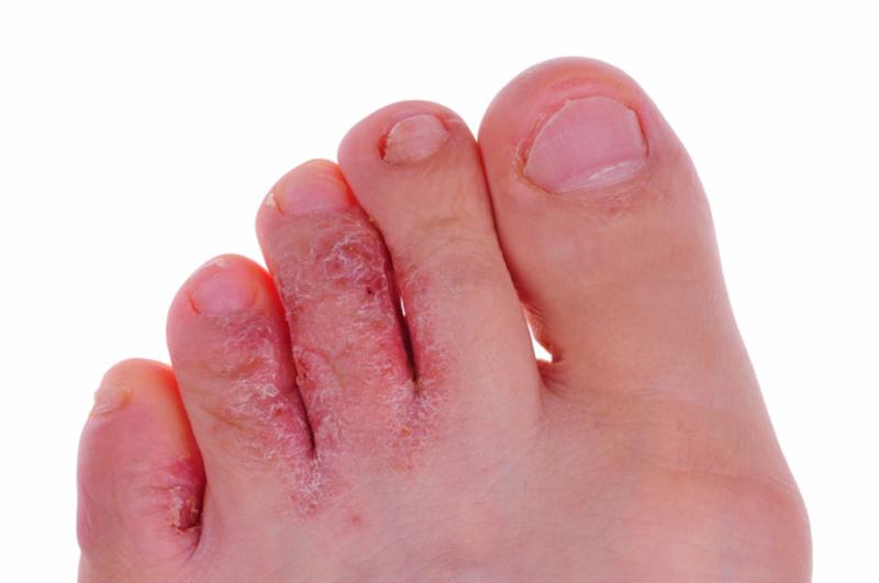 Способы лечения грибка ногах