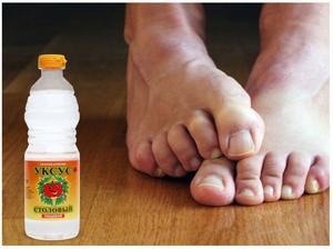 Как вылечить грибок на ногах