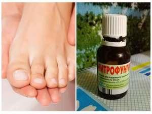 Лечение грибка ног у детей народными средствами thumbnail