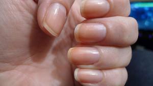 Какими методами лечить грибок ногтей