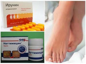 Как вылечить грибок ногтей на руках препараты thumbnail