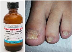 Нашатырный спирт от грибка ногтей на ногах: простые способы лечения оникомикоза