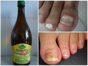 Яблочный уксус против грибка ногтей на ногах