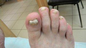 Средство от грибка ногтей на ногах
