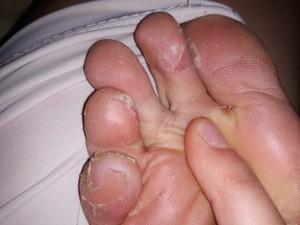 Грибок между пальцев ног