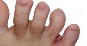 Лекарство от грибка между пальцами ног