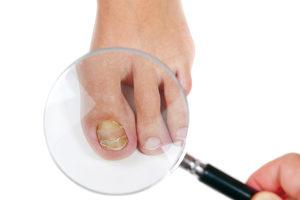 Раствор йода при лечении грибка на ногах