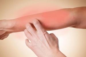 Эффективные мази против грибка на коже