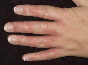Чем вылечить грибок на руках