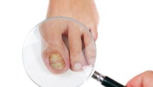 Флуконазол грибок ногтей
