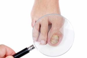 Грибок на ногах: симптомы и способы лечения