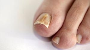 Грибок ногтей какой врач нужен 9