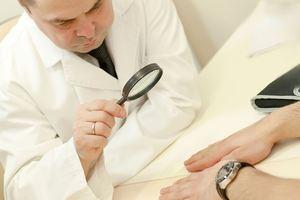 Грибок ногтей какой врач нужен 10
