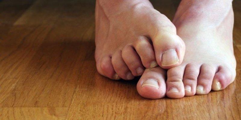 Методы лечения грибка ногтей