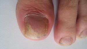 Как бороться с грибком ногтей на ногах