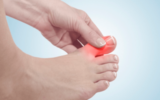 Грибок ногтей на ногах: симптомы и лечение