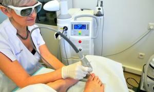 Какой врач лечит грибок ногтей на руках и ногах
