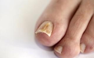 Чем лечить грибок ногтей на ногах: эффективные средства