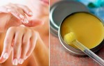 Грибок на коже пальцев рук: пути заражения и методы лечения