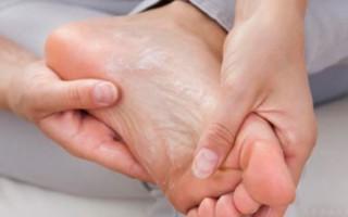 Симптомы грибка на пятках и способы лечения